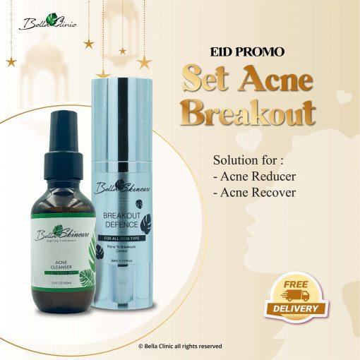 set acne breakout-01